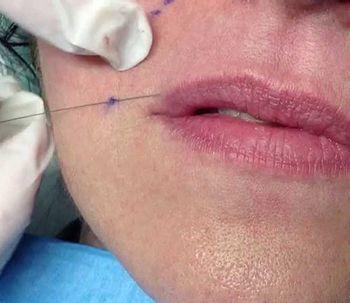 Needle Shaping: un método innovador para el rostro sin inyecciones y sin cirugía