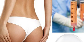 La lipoescultura y la gluteoplastia