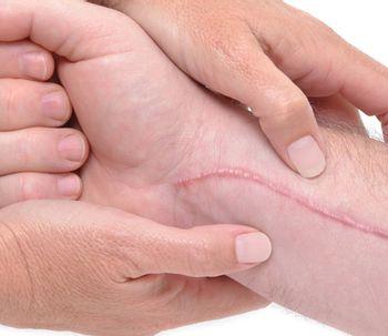 Algunas cuestiones sobre la cirugía correctora de cicatrices