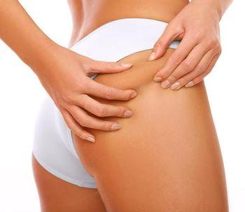 6 alimentos que provocan celulitis