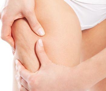 Mujeres al borde de un ataque de nervios: ¡Celulitis!