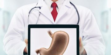4 cirugías para perder peso
