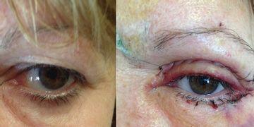Cirugía cosmética de párpados