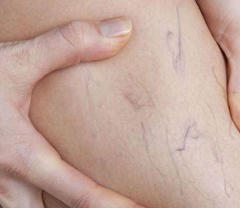 Guía completa de las várices: qué son y cómo tratarlas