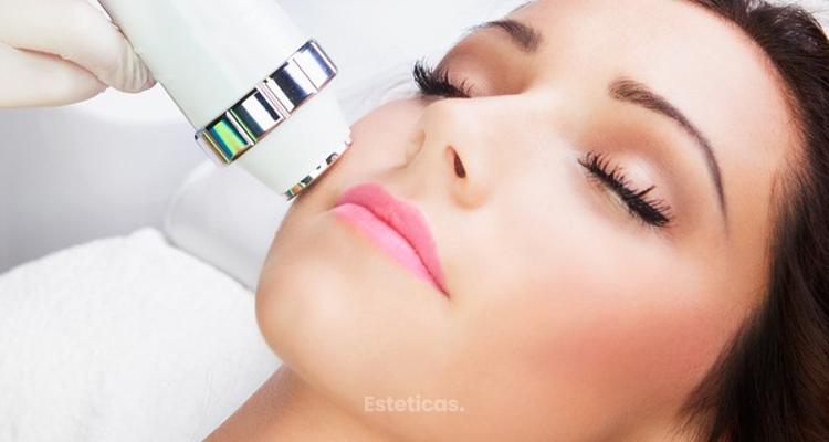 Estética facial: Tipos de láser