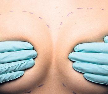 Rinoplastia y aumento de mamas: preguntas frecuentes