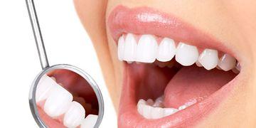 Carillas dentales: ¿qué hay detrás de la sonrisa perfecta?