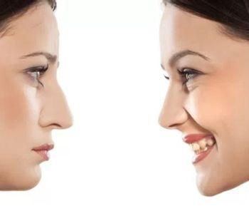 Las cirugías de nariz en la adolescencia