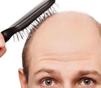La calvicie: cómo tratarla