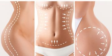 La lipotransferencia: una técnica para eliminar la grasa localizada
