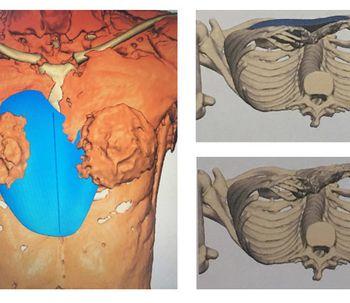 Cirugía revolucionaria ofrece esperanza a personas con malformaciones congénitas con implante 3D