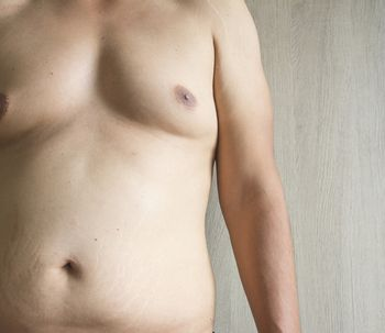 Laserlipólisis, el método eficaz para acabar con la ginecomastia