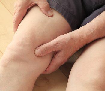 La celulitis también es un problema para los hombres