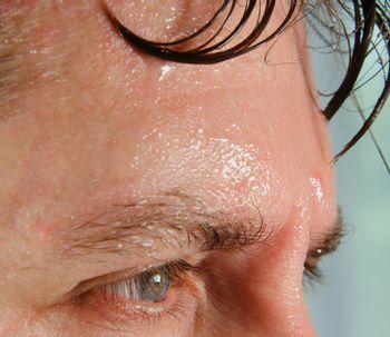 Qué es la hiperhidrosis y cómo se trata