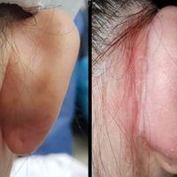 Otoplastia: ¿Qué provoca las orejas en asa o prominentes?