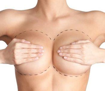 10 recomendaciones post aumento mamario