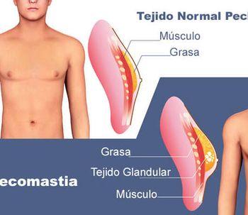 Ginecomastia / Mama masculina