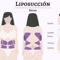 LIPOSUCCION