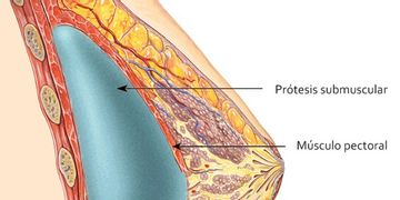 ¿Prótesis de mama por encima o por debajo del músculo? ¿Qué es mejor?