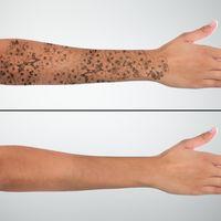 Borrado de tatuajes con láser PicoWay