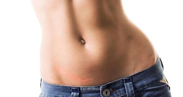 Abdominoplastia y mini-dermolipectomìa