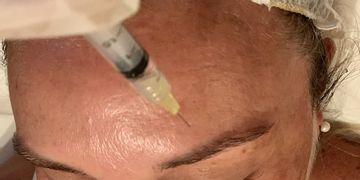 Mesoterapia francesa