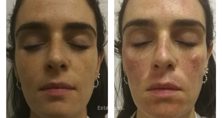 Nuevo Láser Harmony XL: Post tratamiento para manchas faciales