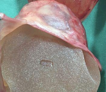 Contractura capsular de implantes mamarios