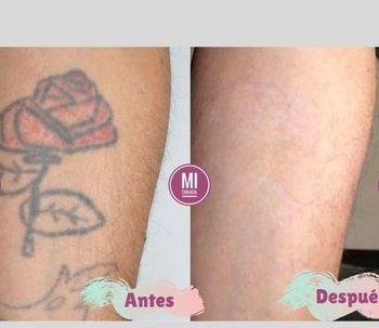 Me quiero borrar un tatuaje, ¿qué opciones tengo?
