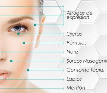 Qué és Armonización Facial?
