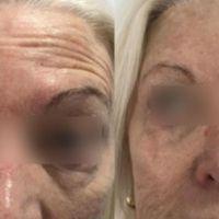 Arrugas del tercio superior facial