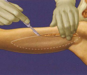 Braquioplastia: rejuvenecimiento de brazos con lifting