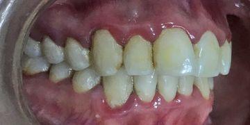 Ortodoncia: estética o salud