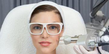 Láser CO2, otra alternativa para el rejuvenecimiento facial