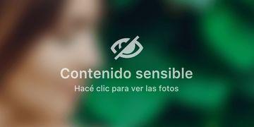 Novedosa técnica para la inclusión de prótesis mamarias: técnica subfascial