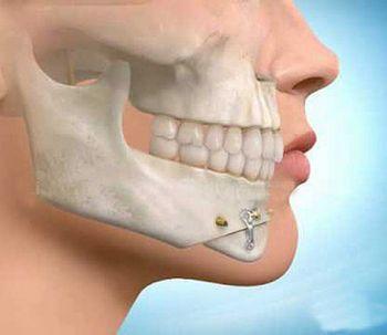 Todo lo que necesitás saber sobre la cirugía maxilofacial