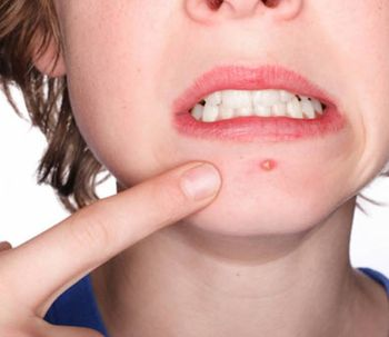 Tipos de acné y tratamientos