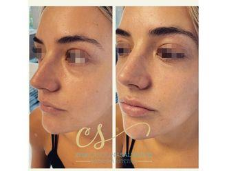 Rejuvenecimiento facial-663358