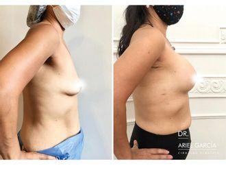 Aumento mamas - 791202