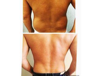 Liposucción-638448