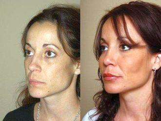 Rellenos faciales-638460