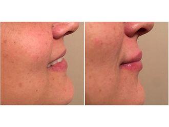 Rellenos faciales-638462