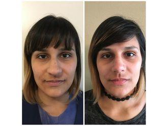 Rejuvenecimiento facial-648341