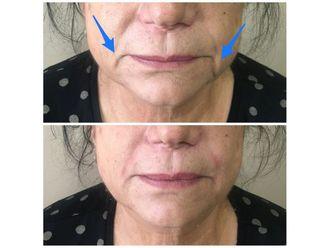 Botox-648344