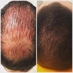 Implante Capilar - Dr. Javier Recchiuto