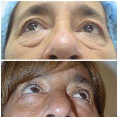 Blefaroplastia - Dr. Javier Recchiuto