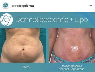 Dermolipectomía - 636089