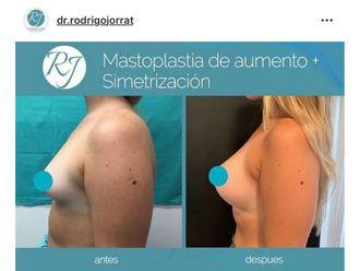 Aumento mamas - 636090