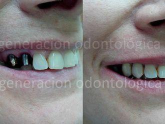 Prótesis dentales-443861