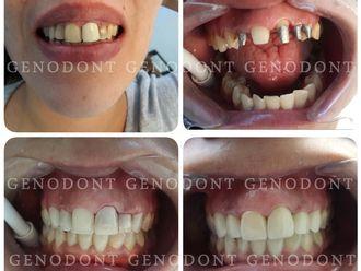 Prótesis dentales-572248